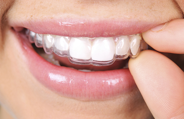 What Do Invisalign Braces Cost?